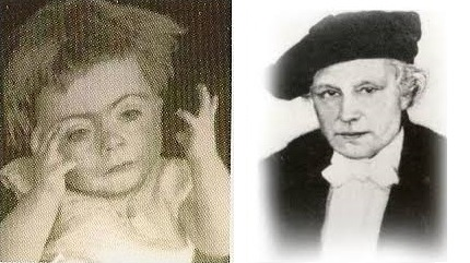 <p>On the left is the first known photograph of a child with Cornelia de Lange.  On the right is Professor Cornelia de Lange who described the syndrome in 1933.</p>